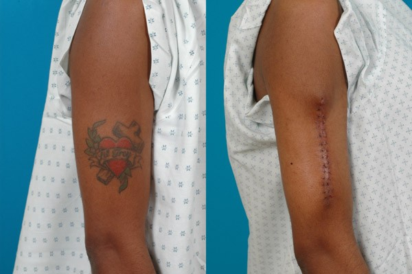 Surgically removing tattoos for Tattoo removal in queens